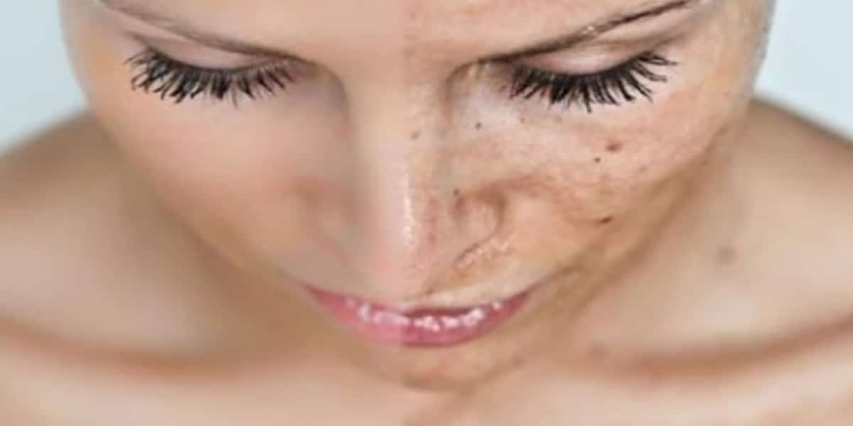 how to tell if you have damaged your skin